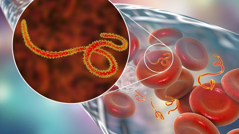 Das Ebolavirus führt zu Störungen der Blutgerinnung. (Symbolfoto)