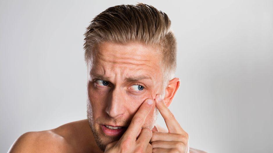 Mann drückt sich einen Pickel aus. (Symbolfoto)